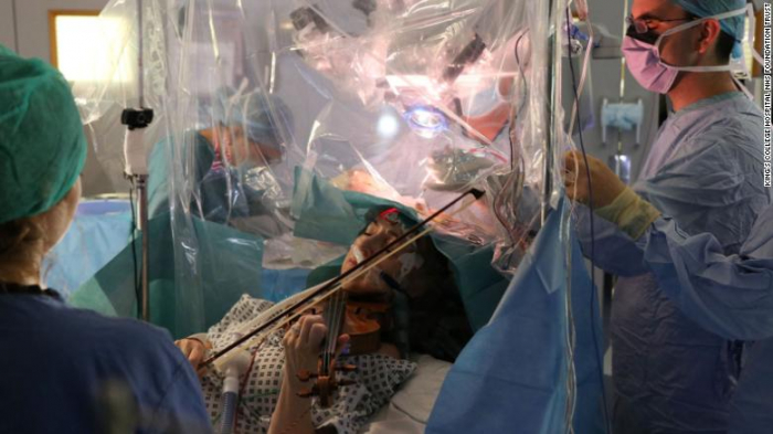 This violinist played her instrument during brain surgery -   NO COMMENT
