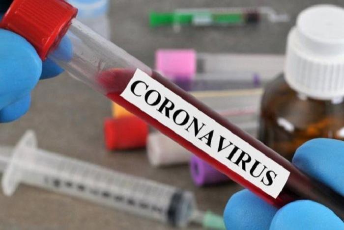 Ermənistanda 407 nəfər virusa yoluxdu - Vəziyyət gərgindir