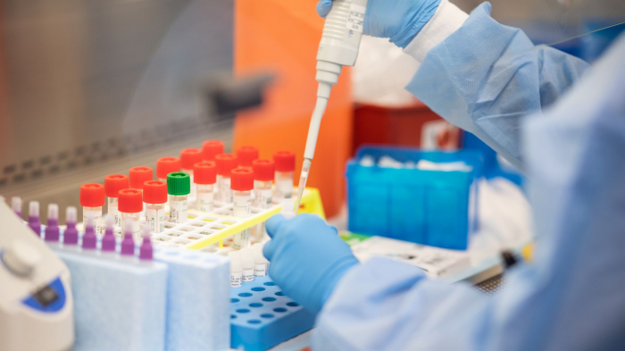 Ölkədə koronavirusa görə 20 mindən artıq test aparılıb