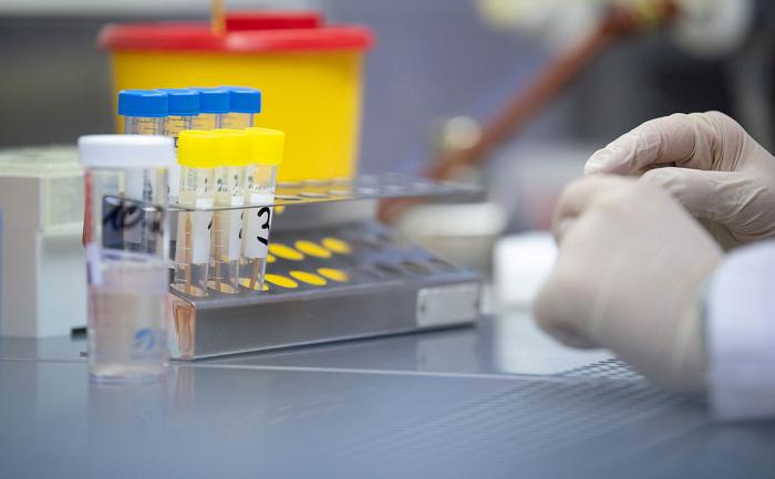 روسيا تقدم لأذربيجان 70 نظام اختبار لفيروس كورون