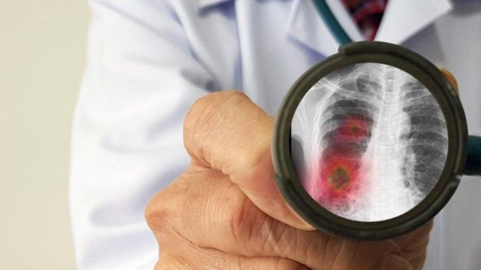 Türkiyədə 75 nəfər koronavirusdan ölüb