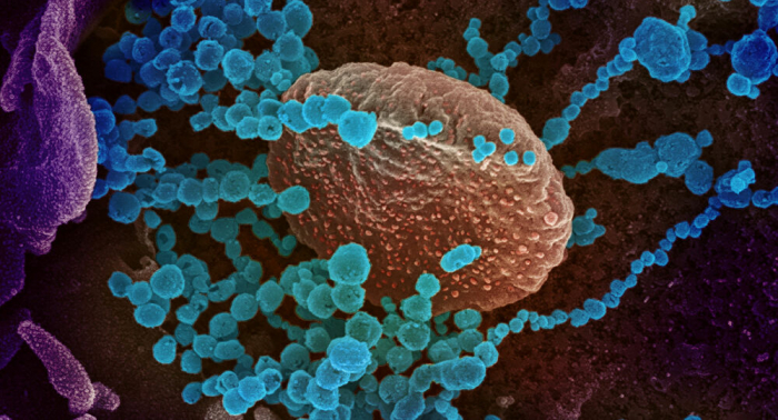 Expertin nennt grundsätzlichen Unterschied des Coronavirus von der Grippe
