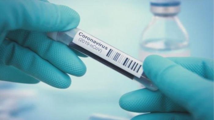 In Aserbaidschan starben zwei Menschen an Coronavirus