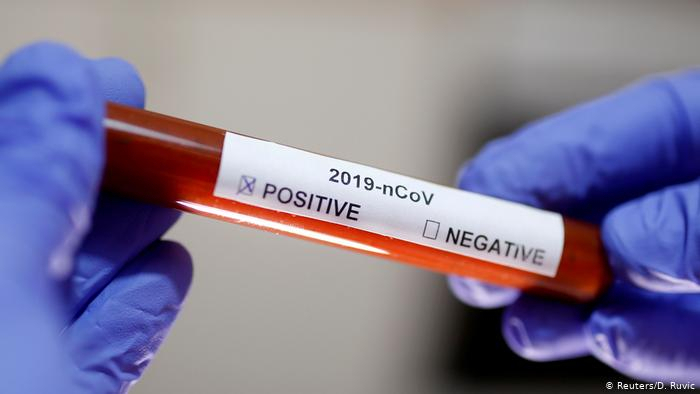 State Committee: Activists of Azerbaijani diaspora infected with coronavirus