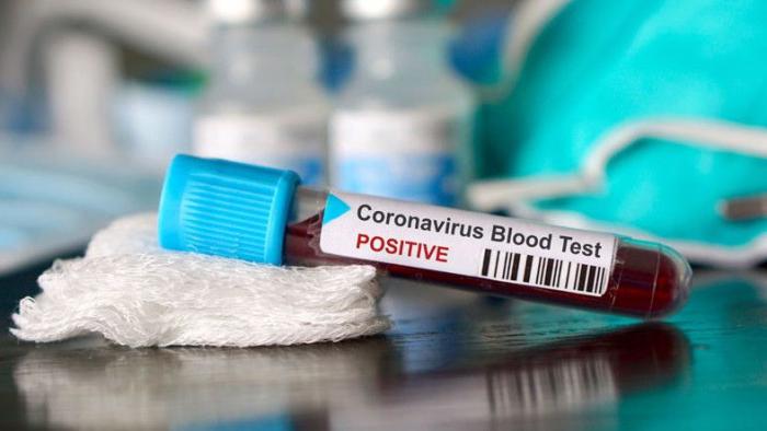 Express tests to detect coronavirus to be used in Azerbaijan