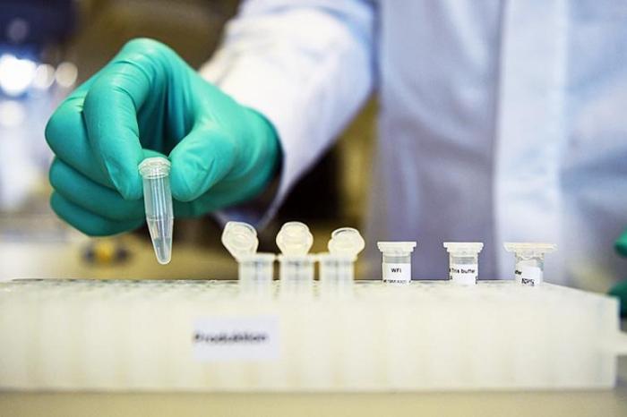 Ölkədə koronavirusa yoluxanların sayı 580-i keçib - RƏSMİ