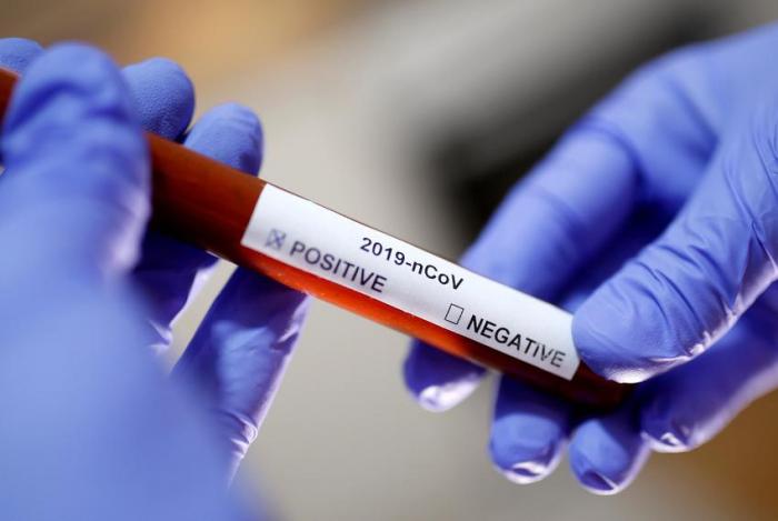 Coronavirus en Azerbaiyán: Confirman 78 nuevos casos y ya hay 484 infectados