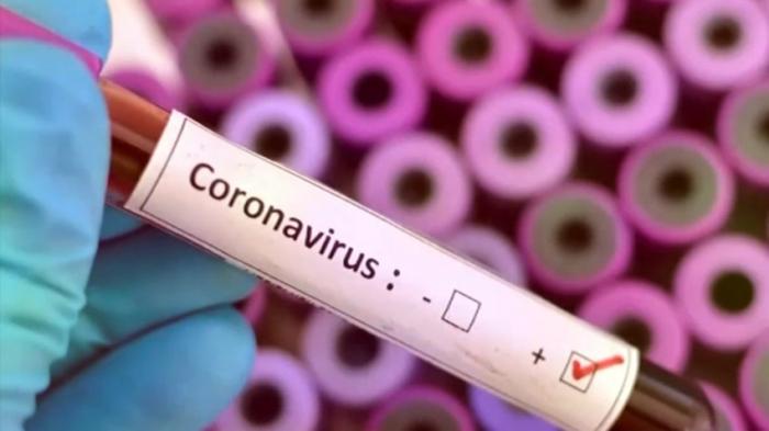 - 18 nəfərdə koronavirus aşkarlanıb
