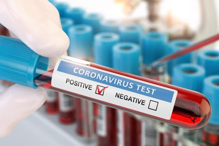 Azerbaiyán registra 118 casos de contagio por coronavirus,87 recuperadas