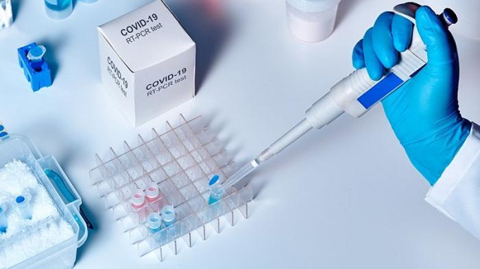 COVID-19-la bağlı testlərin sayı açıqlandı - RƏSMİ