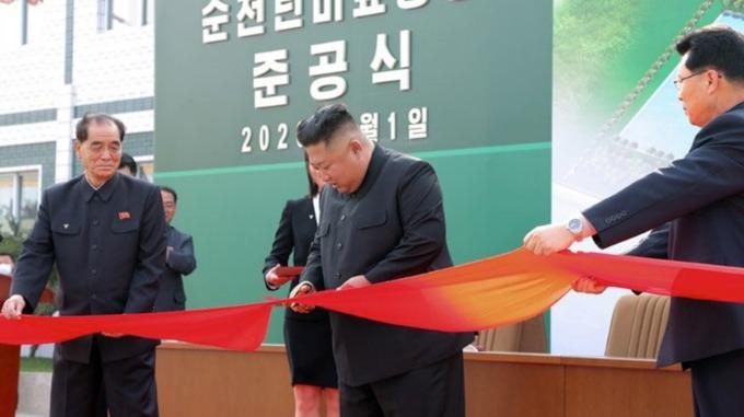 """Koreya rəsmisi:  """"Kim Çen In əməliyyat olunmayıb"""""""
