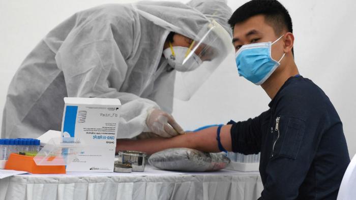 Why coronavirus hits men harder -   iWONDER