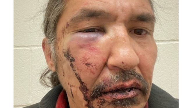 Canada indigenous chief battered during arrest