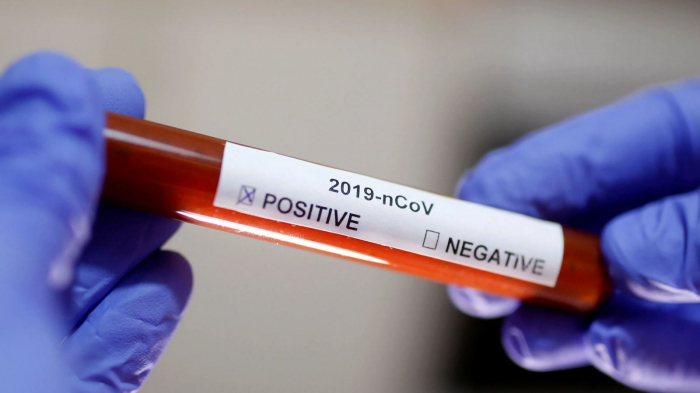 Serbia's coronavirus cases top 13,000