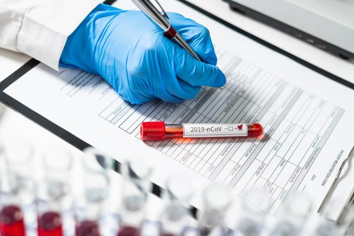 Azerbaijan records 517 new coronavirus cases, 7 deaths