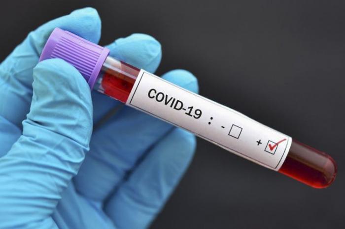 Rusiyada virusa yoluxanların sayı 640 mini keçdi