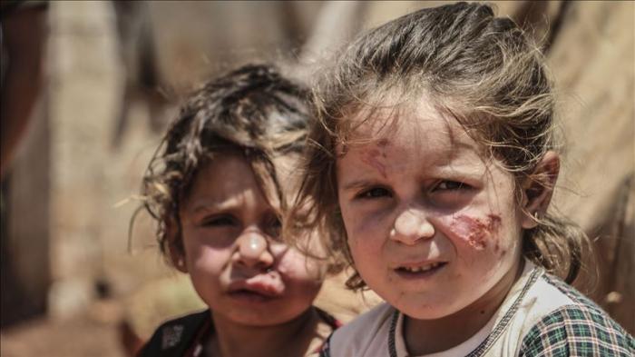 Enfermedad de leishmaniasis se propaga en los campos de refugiados en Idlib, Siria