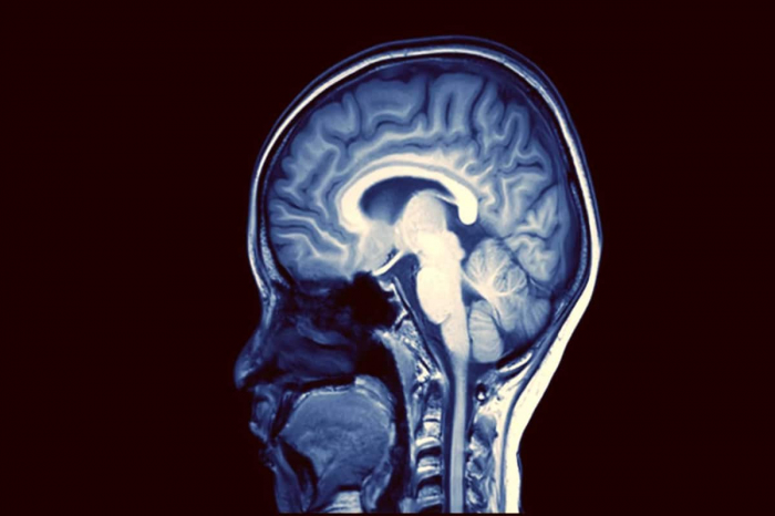 Scientists warn of potential wave of COVID-linked   brain damage