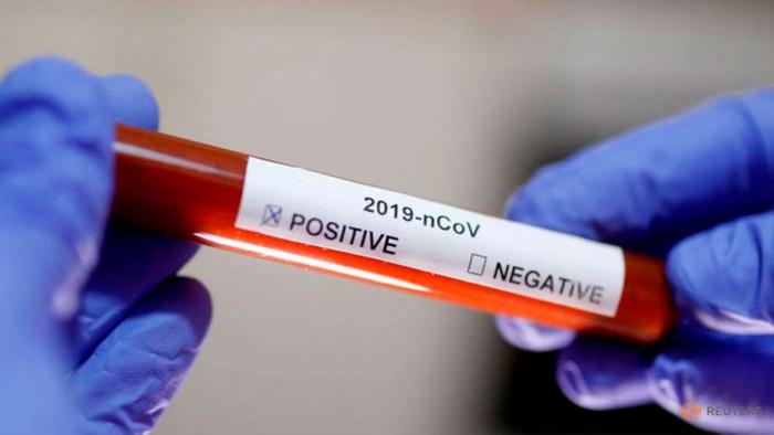 Ukraynada bir gündə 1197 nəfər koronavirusa yoluxdu