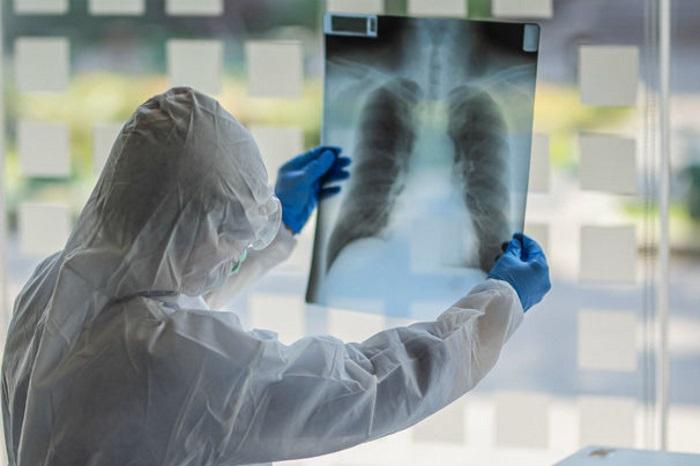 Dünyada koronavirusa yoluxanların sayı 11,8 milyonu ötüb