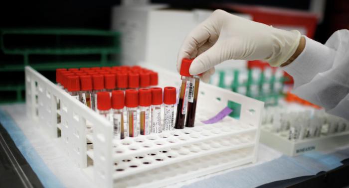 Gürcüstanda daha 296 nəfər koronavirusa yoluxdu