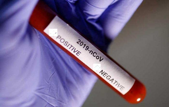 Rusiyada koronavirus xəstələrinin sayı artır