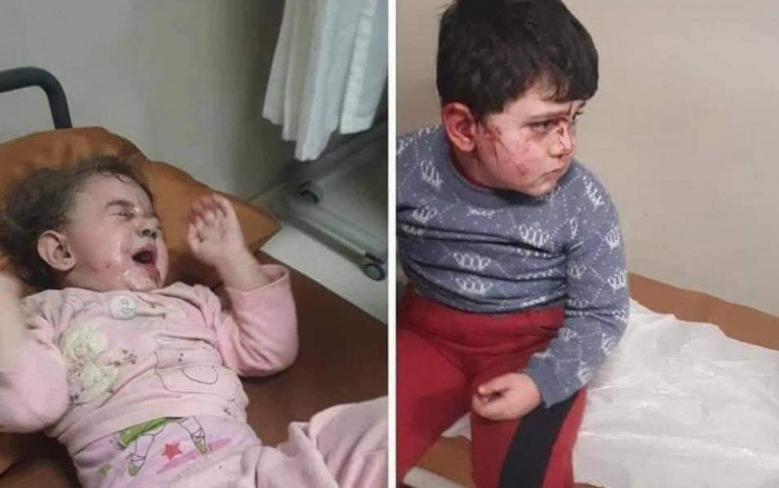 Azərbaycanlı uşaqlara qarşı erməni terroru -  FOTOLAR