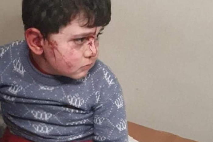 6 children injured as a result of Armenia