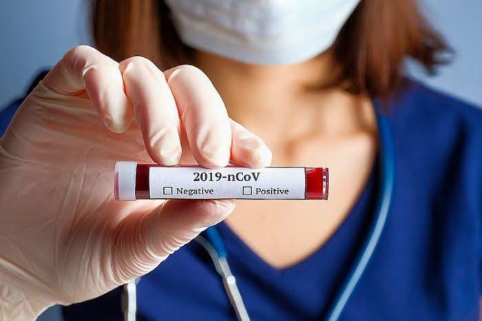 Casos de covid-19 en el mundo superan los 99 millones de contagios