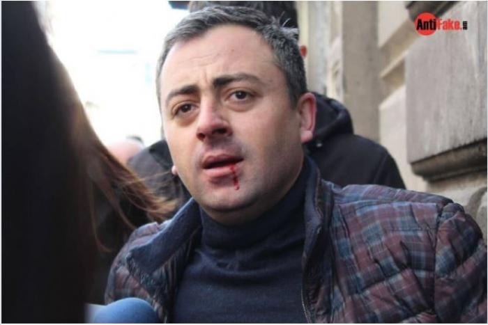 Ermənistanda polis müxalifət fəalını döyüb -  VİDEO