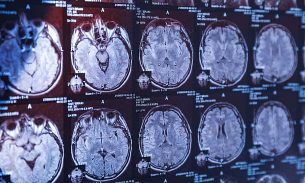 Why the human brain is so big -  iWONDER
