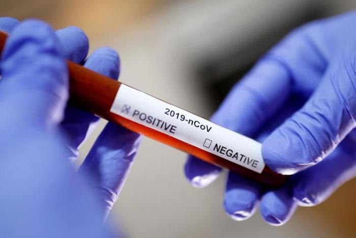 Azerbaiyán detecta 2144 nuevos casos de COVID-19