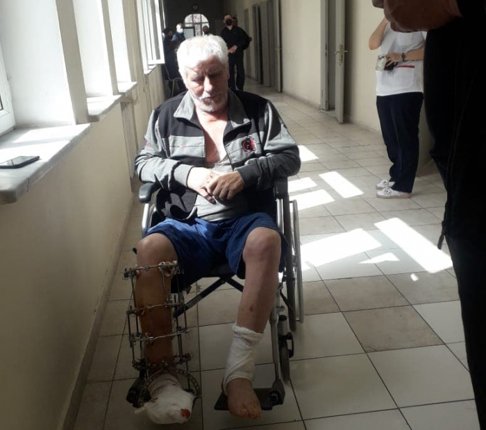 """Tragedia de la familia de Agdam:  """"Dos de mis hijos cayeron en una mina y murieron, otro perdió la pierna"""" -  FOTOS"""