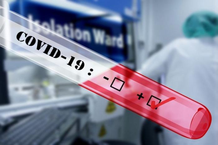 ABŞ-da virusdan ölənlərin sayı 574 mini ötdü