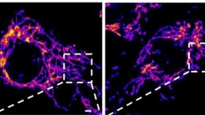 Forscher: Covid-19 ist eine Gefäßerkrankung