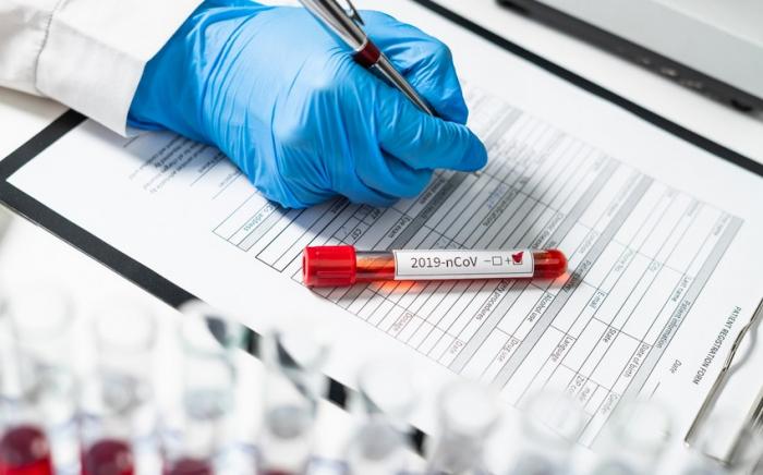 Azerbaijan's daily coronavirus cases drop below 400