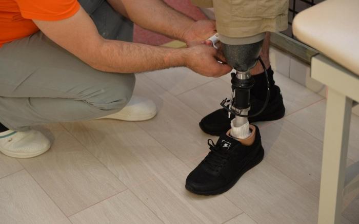 Qazilərin protezlə təminatında problem yoxdur -  RƏSMİ