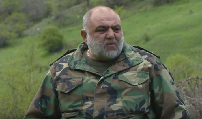 Xocalı qatili olan erməni generalın ayaqları çürüyüb
