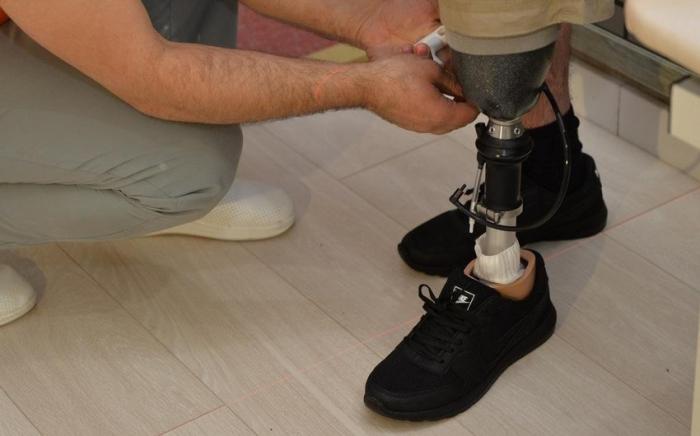 25 qazi yüksək texnologiyalı protezlə təmin edilib