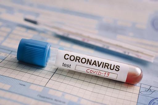 Am letzten Tag haben sich 2042 Menschen mit COVID-19 infiziert, 29 Menschen sind gestorben