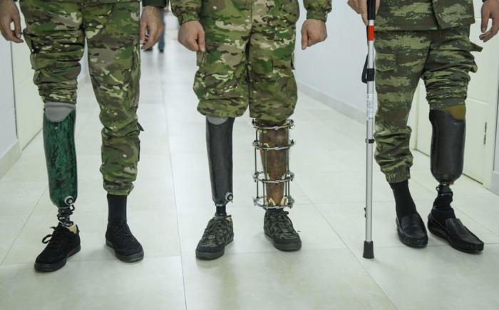 143 qazi yüksək texnologiyalı protezlə təmin olunub