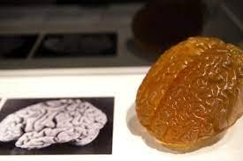 La insólita historia del robo del cerebro de Albert Einstein