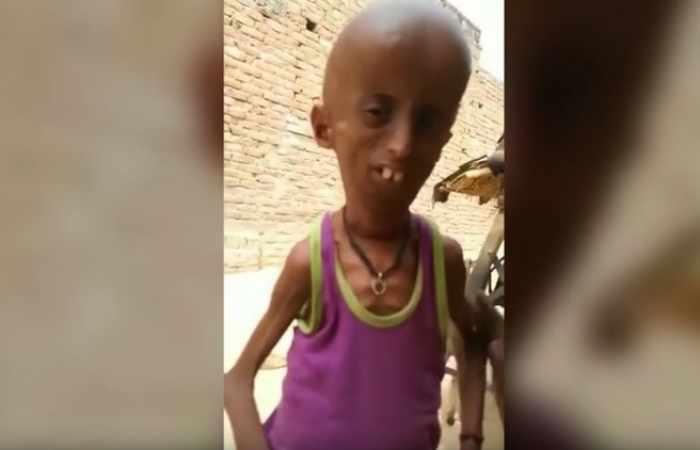 Este indio de 21 años vive atrapado en el cuerpo de un anciano