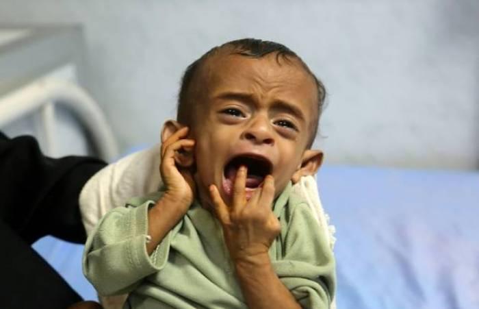 Yémen: 5.000 enfants tués ou blessés du fait de la guerre, selon l'Unicef