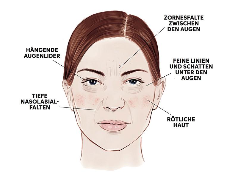 Tolle Gesicht Anatomie Haut Zeitgenössisch - Anatomie Von ...