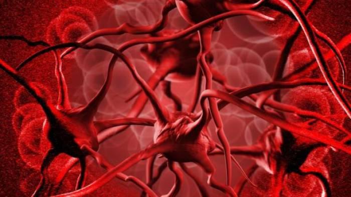 La anemia muchas veces se cataloga por error como depresión
