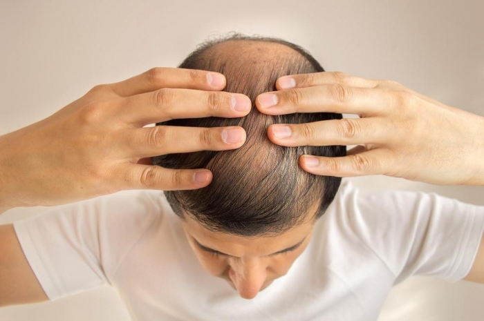 Men going bald or grey at a young age at greater risk of heart disease