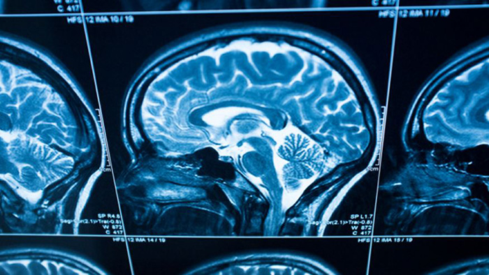 Why the brain is resistant to truth