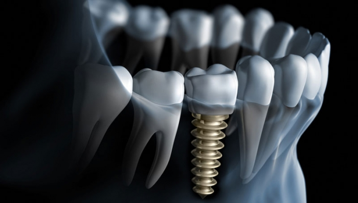 Chinese robot has performed the world's first automated dental implant