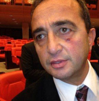 Türkiyədə deputat deputatı döyüb - FOTO